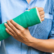 Successful Plaster Immobilization management in fracture