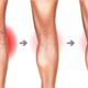 What Are The Costs Involved In A Varicose Vein Treatment?