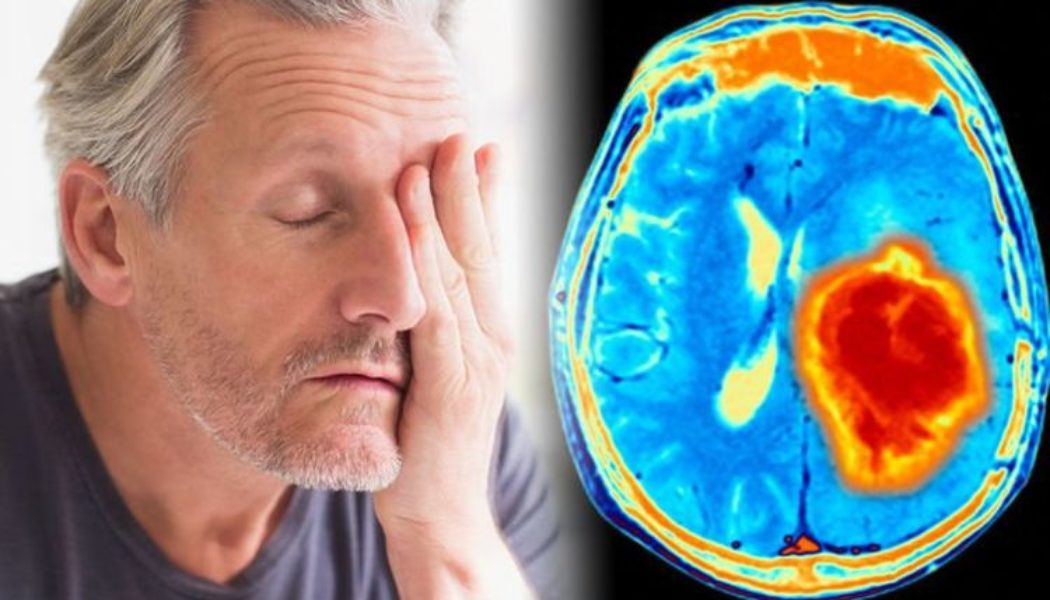 Brain Tumours Can Be Deadly: What to Know?