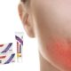 Treatment options for fungal lip infections