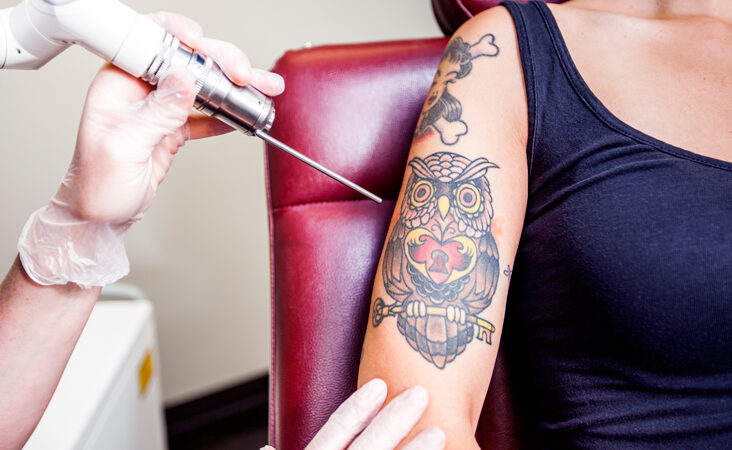 Know Why Tattoos Fade and How to Prevent It