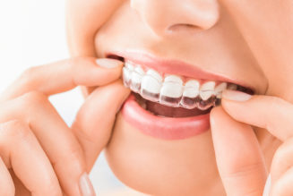 5 Great Reasons To Get Invisalign Today