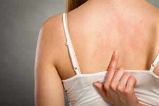 4 Essential Home Remedies To Get Rid Of Back Acne