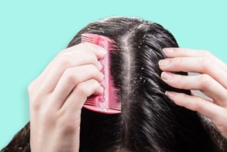 The Issue of dandruff and the ways to deal with it