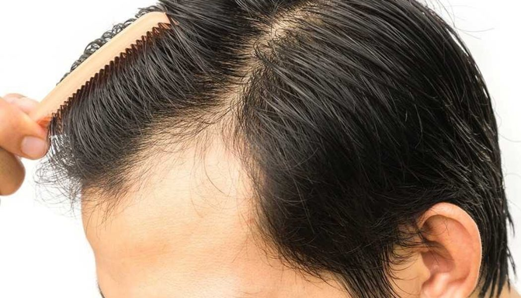 Why Choose Hair Transplant Surgery For Certain?