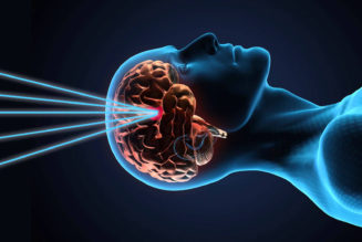 Brain Tumors can be removed by surgery