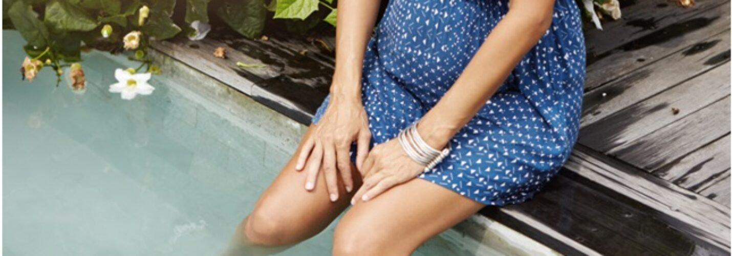 Varicose vein and pregnancy