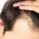 Why the Hair transplant surgery is important?