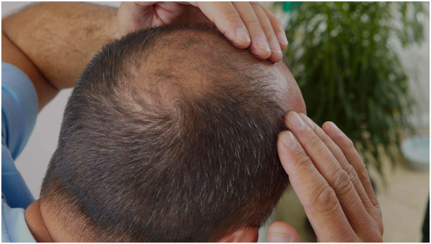 Is the Modern Method of Hair Restoration Worth the Cost?