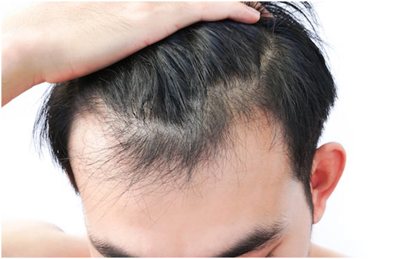 How Can You Increase Your Hair Growth Effectively?